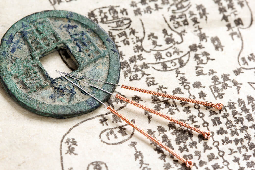 Chinese acupunture needles.